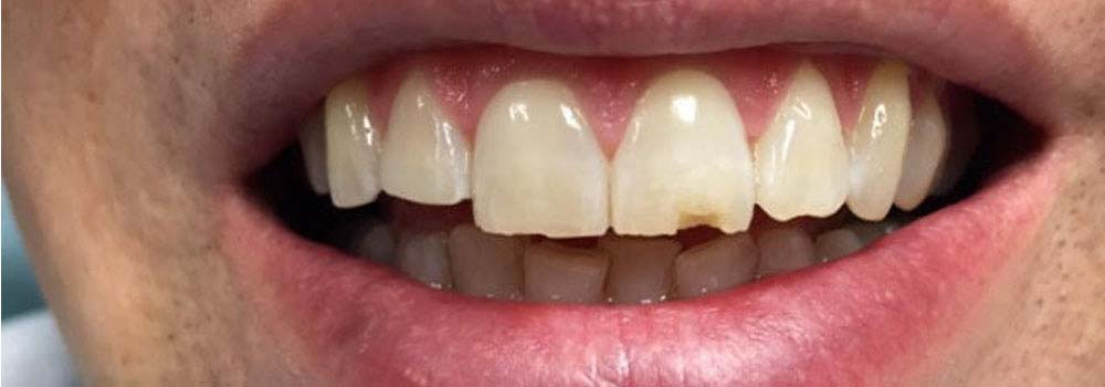Photo of chipped tooth before