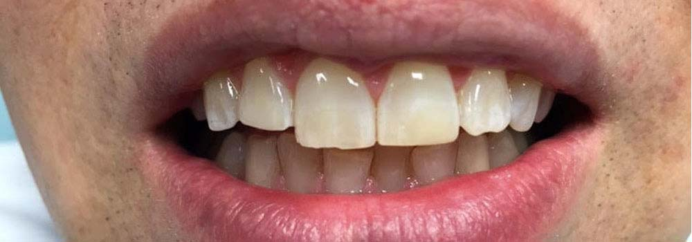 Photo of chipped tooth after