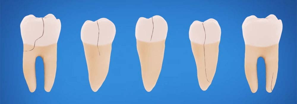 Tooth repair: how to fix a chipped, cracked or broken tooth 5