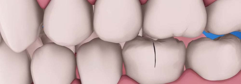 Tooth repair: how to fix a chipped, cracked or broken tooth 3