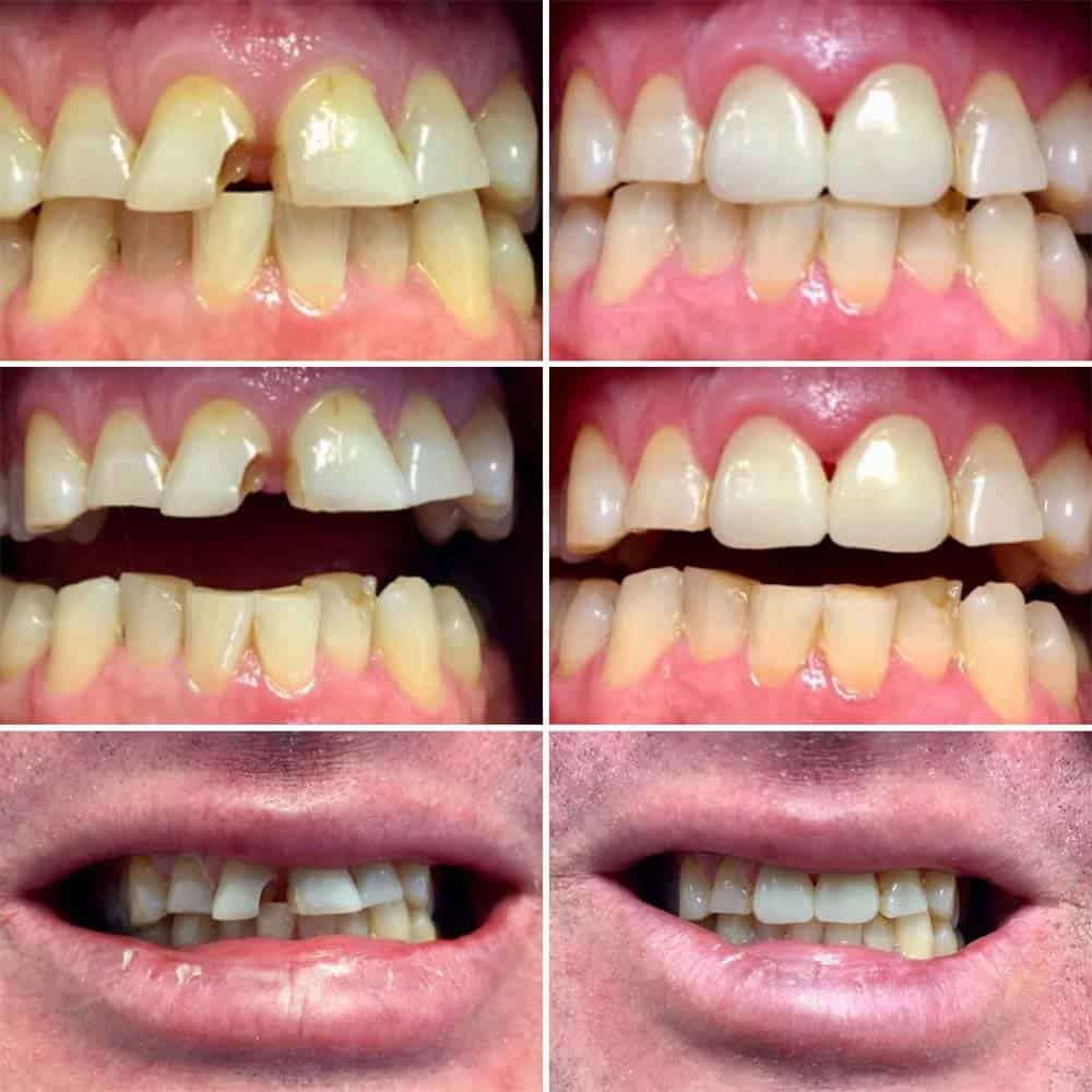 Multiple before and after photos of repaired broken teeth