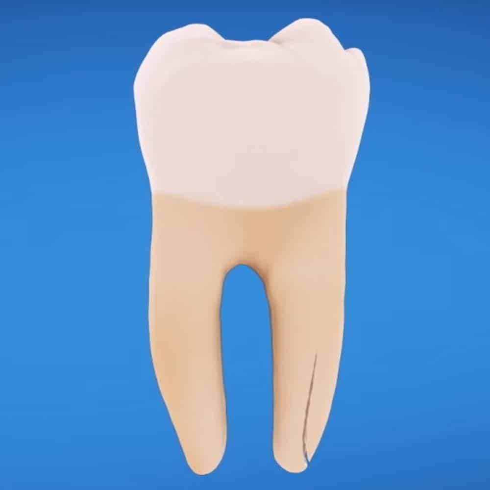 Tooth repair: how to fix a chipped, cracked or broken tooth 16