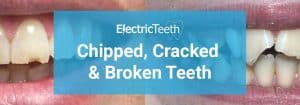Tooth repair: how to fix a chipped, cracked or broken tooth