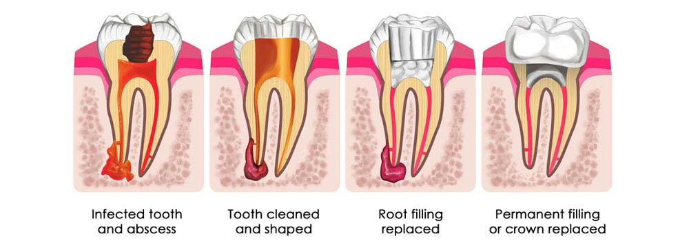 Root Canal Treatment: Cost, Procedure & FAQ 7