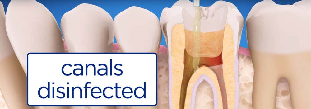 Root Canal Treatment: Cost, Procedure & FAQ 13