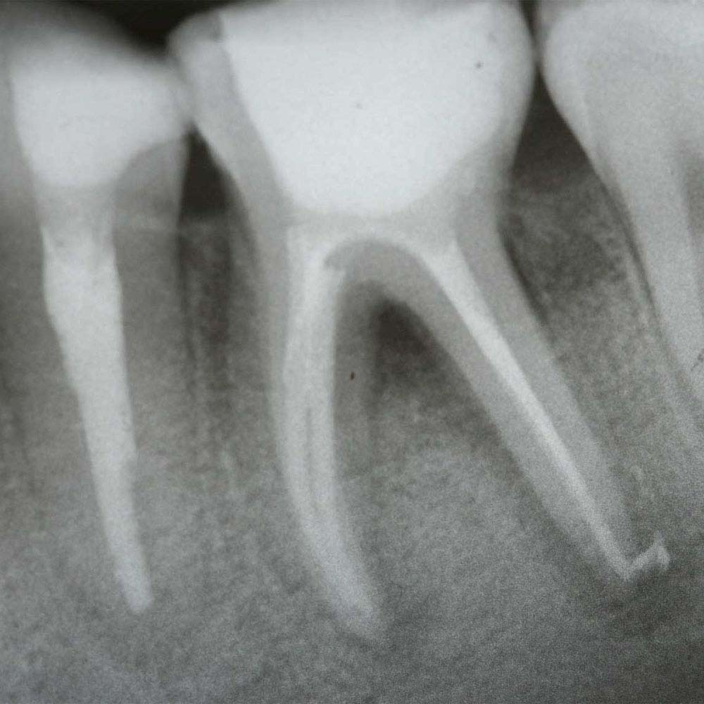 X-ray of root canal