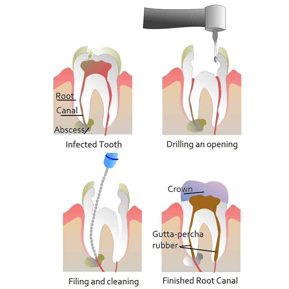 Root Canal Treatment: Cost, Procedure & FAQ - Electric Teeth