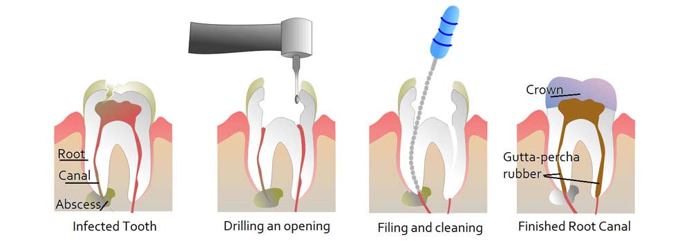 Illustration showing how root canal treatment works