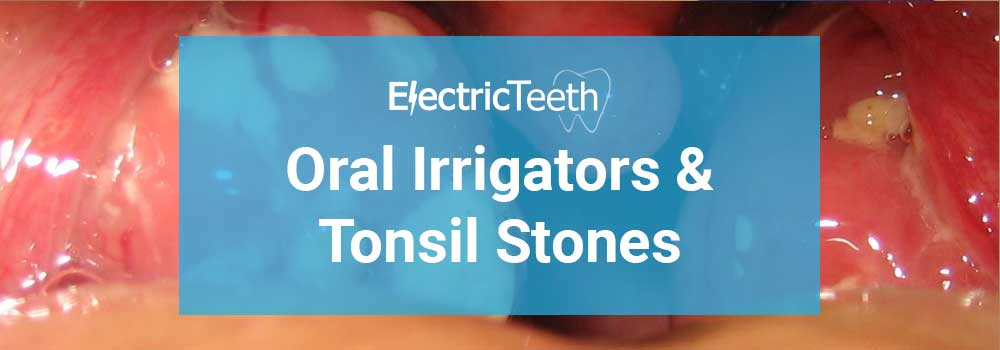 Oral Irrigators & Tonsil Stones - Header Image
