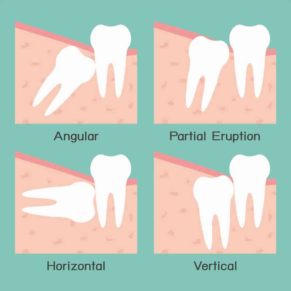 Illustration showing different types of wisdom tooth problems