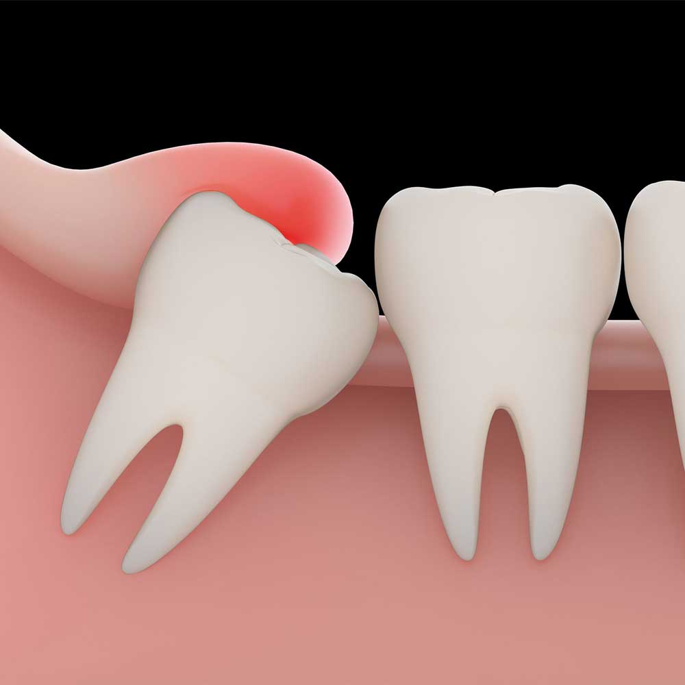 illustration showing how wisdom tooth causes pain