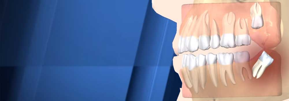 illustration of widsdom teeth coming though