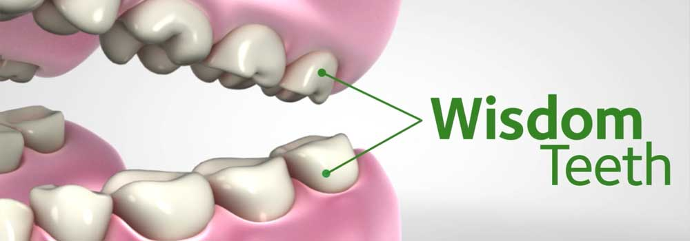 Illustration showing position of wisdom teeth