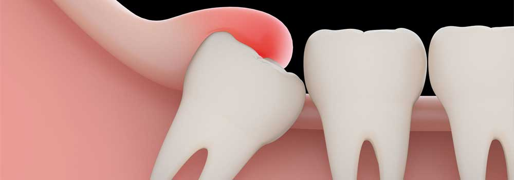 Wisdom Teeth Removal: Cost (UK), Recovery Time, Pain Relief & FAQ 7