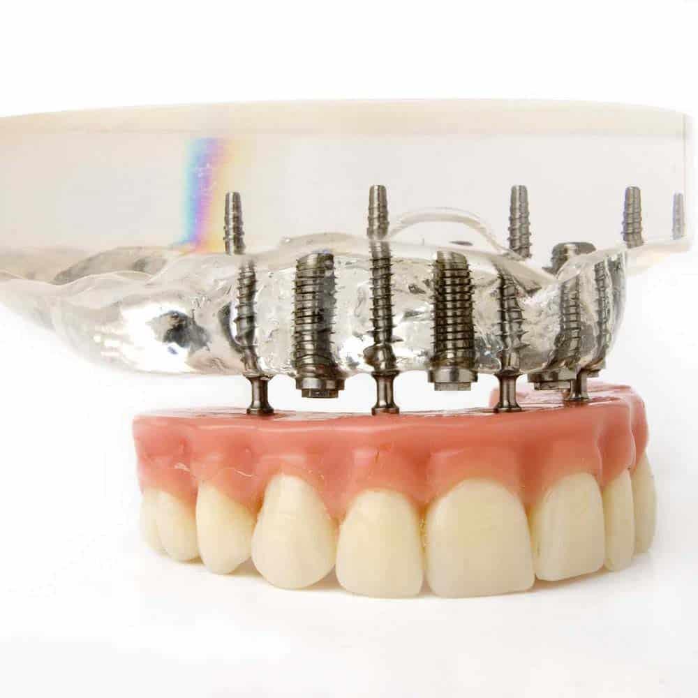 Denture Implants & Implant Retained Dentures: Procedure, Costs & FAQ 2