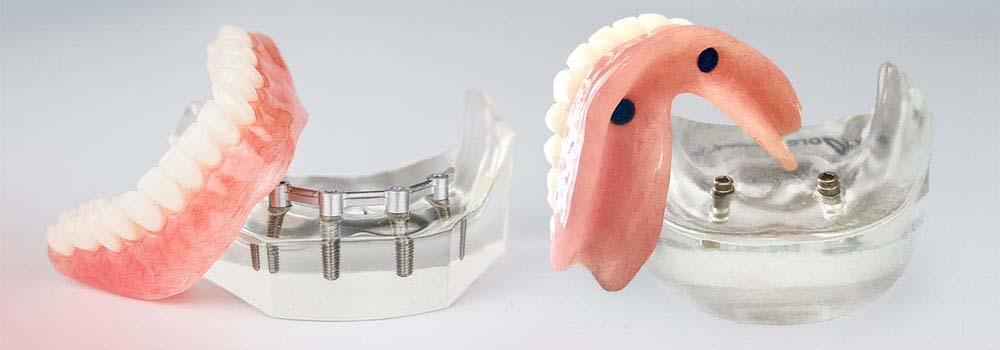 Denture Implants & Implant Retained Dentures: Procedure, Costs & FAQ 7