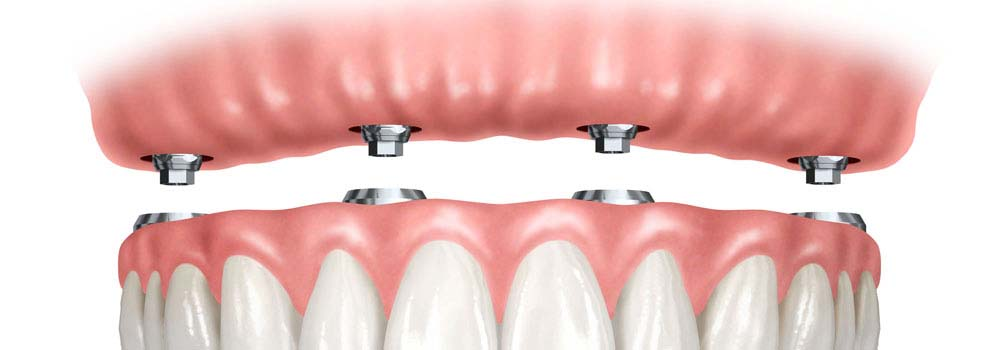 Denture Implants & Implant Retained Dentures: Procedure, Costs & FAQ 12