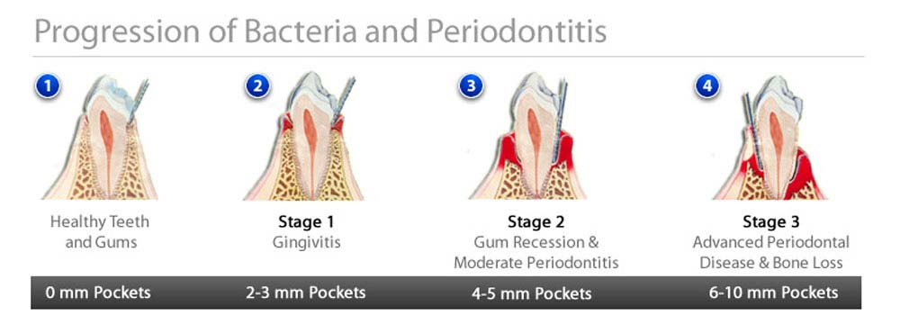 Illustration showing the progression of bacteria and periodontitis