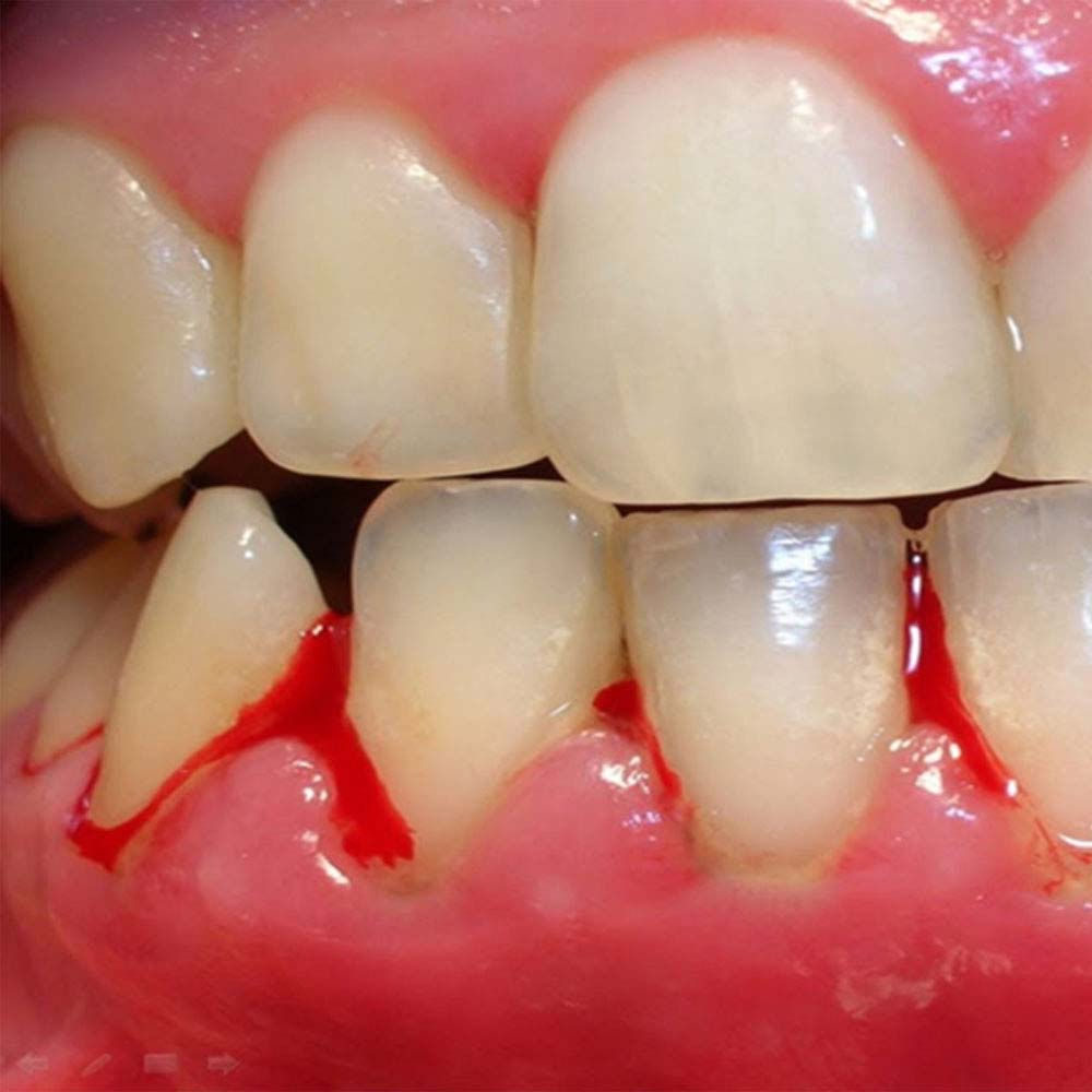 Close up photo showing bleeding gums