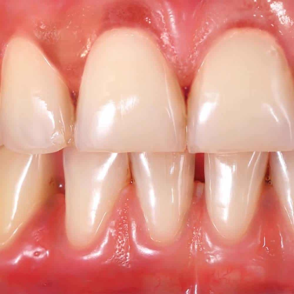 Gingivitis (Gum Disease): Symptoms, Causes, Treatments & FAQ. 19