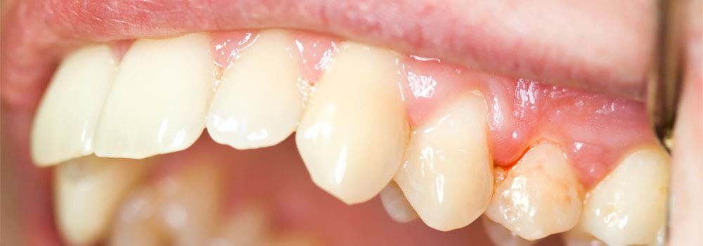 Close up photo of person with gum disease