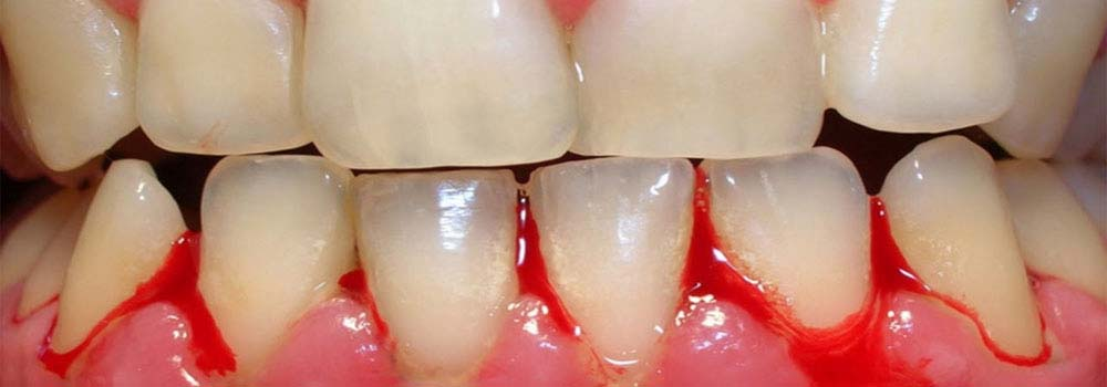 Gingivitis (Gum Disease): Symptoms, Causes, Treatments & FAQ. 7