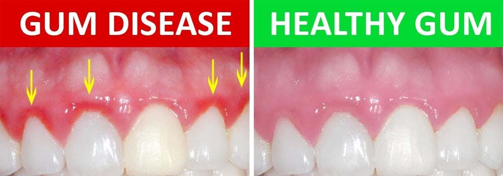 Gums with gingivitis next to healthy gums
