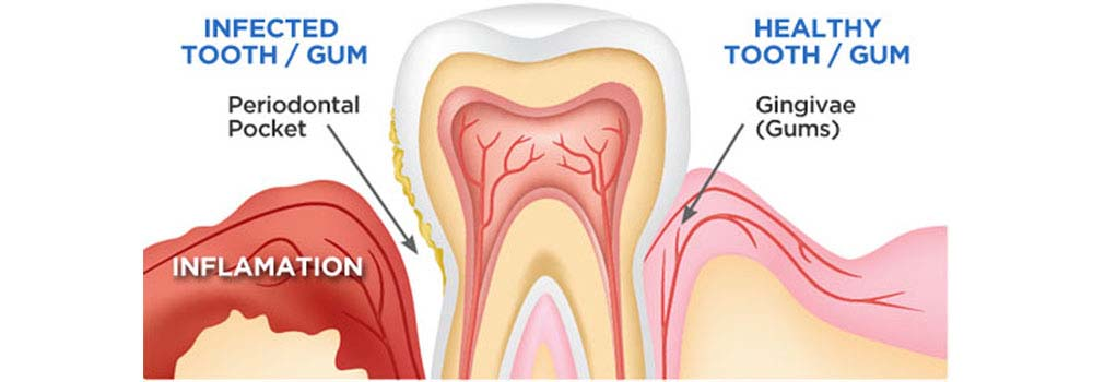 Gingivitis (Gum Disease): Symptoms, Causes, Treatments & FAQ. 11
