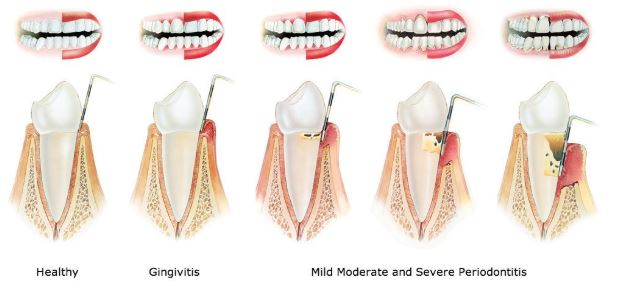 Gingivitis (Gum Disease): Symptoms, Causes, Treatments & FAQ. 3