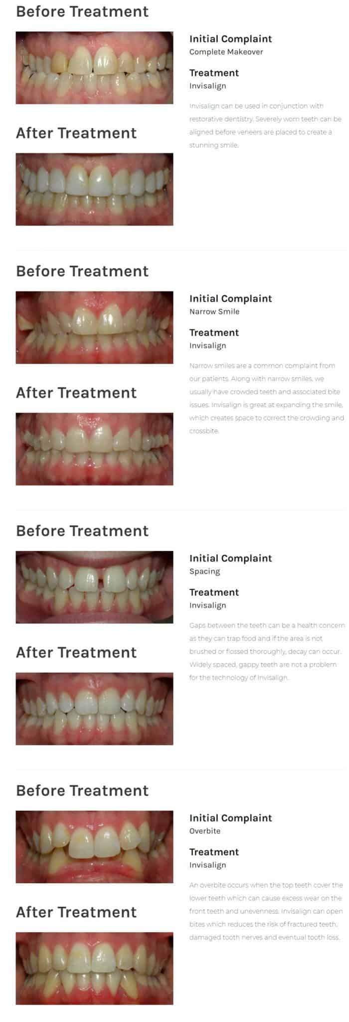 Invisalign Invisible Braces: Reviews, Costs & FAQ - Electric