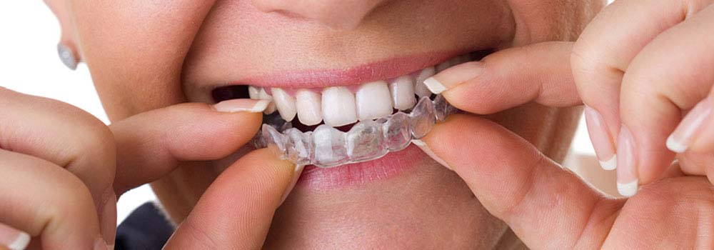 Invisalign Invisible Braces: Reviews, Costs & FAQ 19