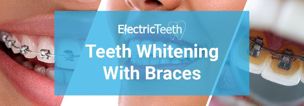 Can you whiten teeth with braces on