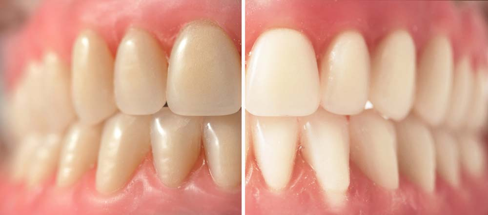 Why Tooth Whitening Can Be A Confusing Topic 3