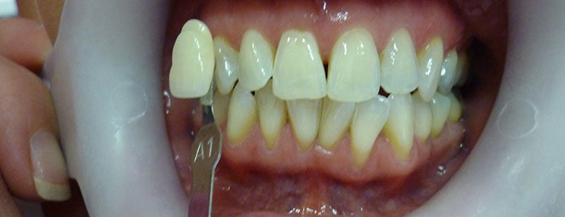 Teeth Whitening Before & After Photos 2