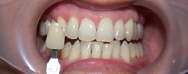 Teeth Whitening Before & After Photos 5