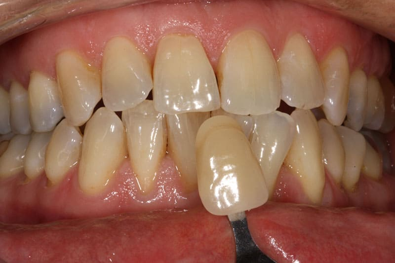 Teeth Whitening Before & After Photos 1