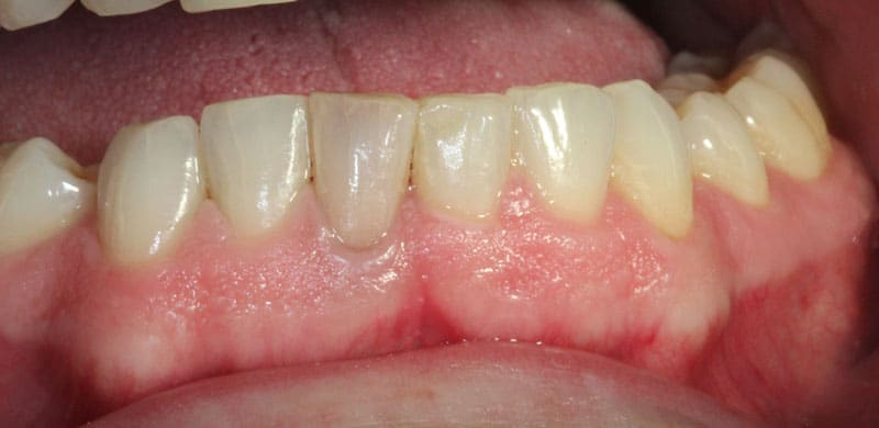 Teeth Whitening Before & After Photos 7