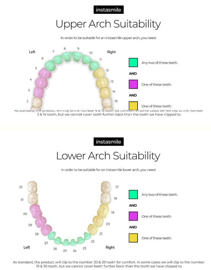 Instasmile image showing upper and lower arch suitability
