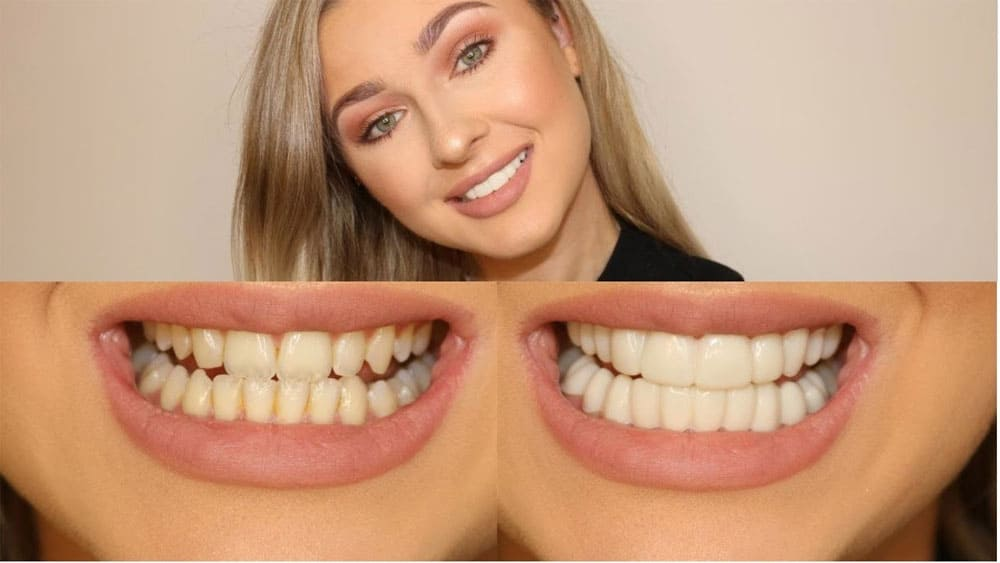 Secret Veneers before and after photo