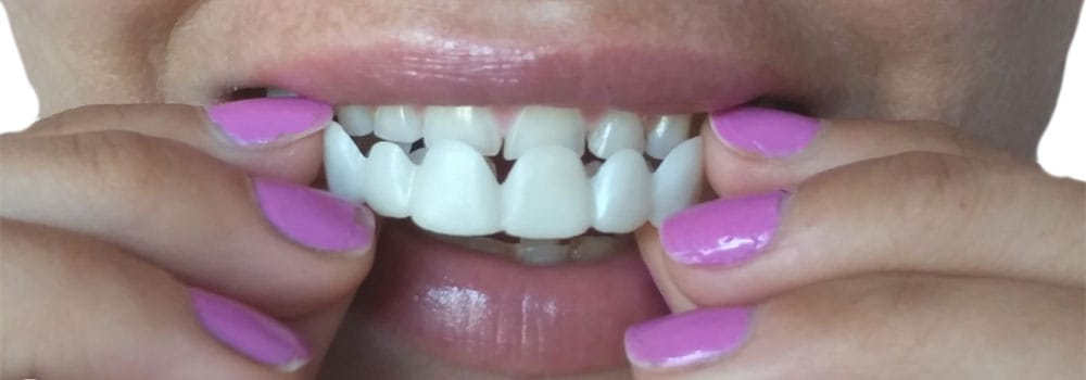 Best Snap On Veneers: The Internet Isn't The Place To Find Them 1