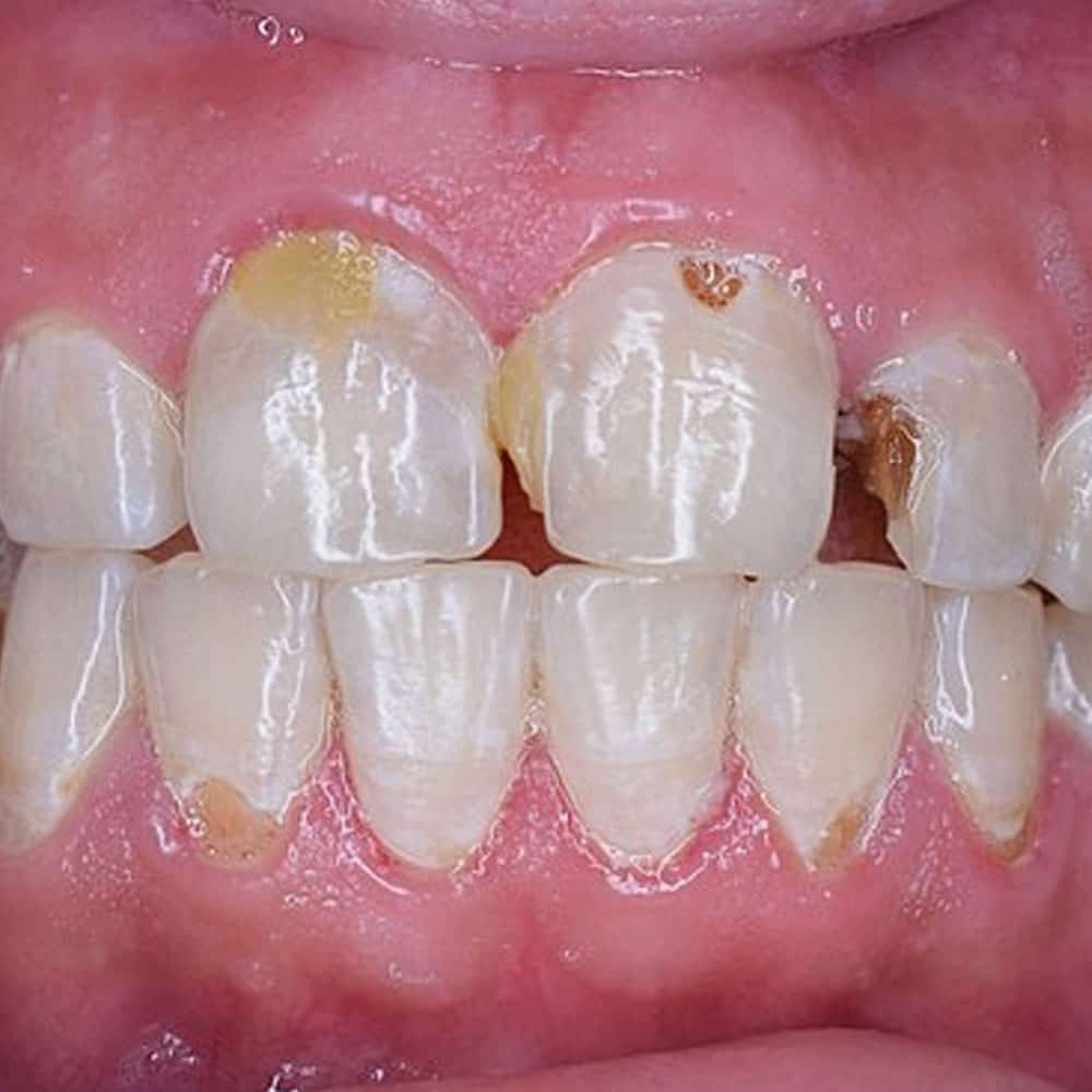 Tooth Decay: Signs, Symptoms & Treatments 5