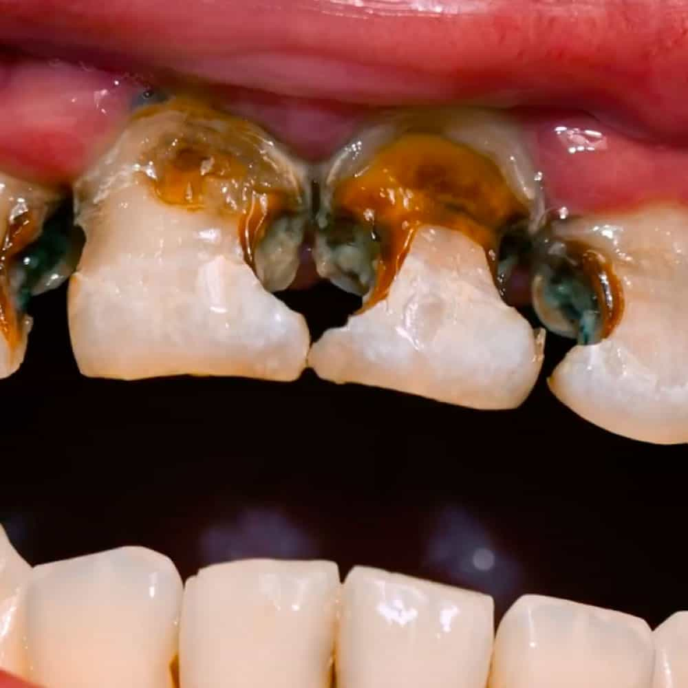Tooth Decay: Signs, Symptoms & Treatments 8
