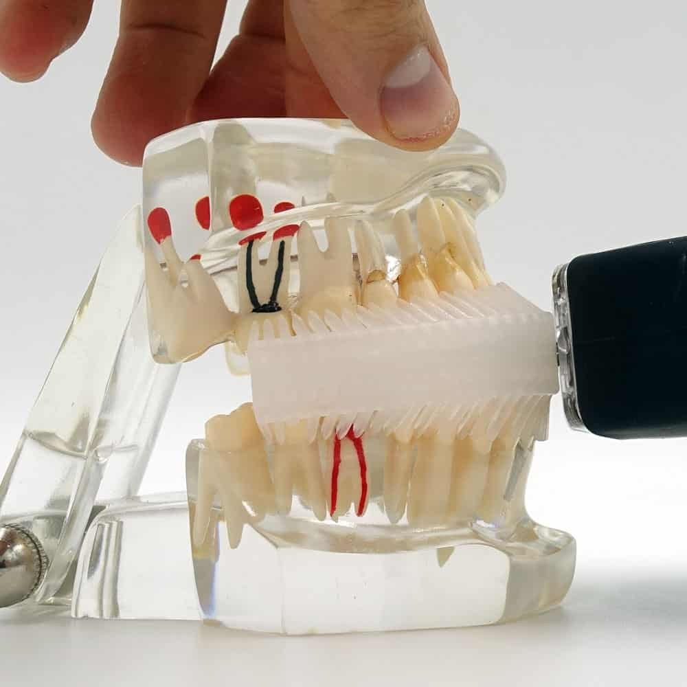 Mouthpiece Toothbrushes: Think Twice Before You Buy 28