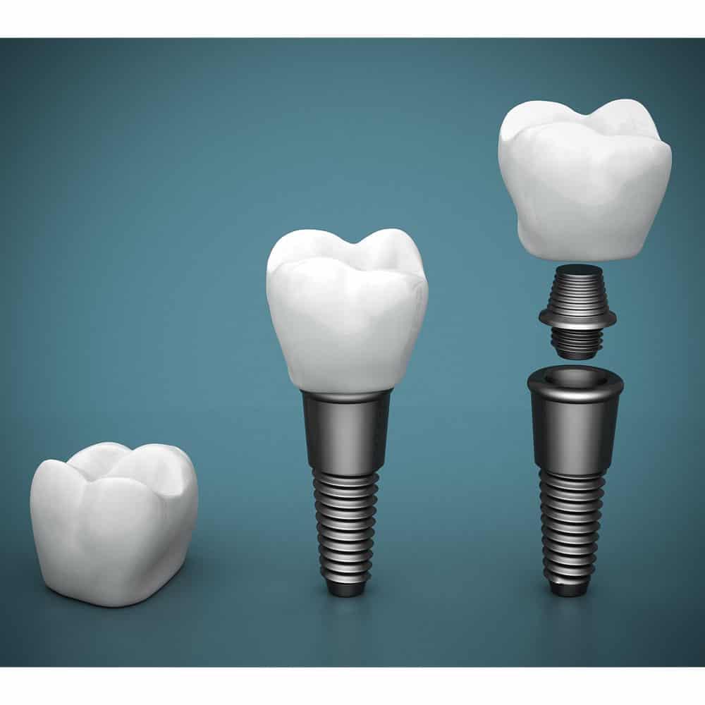 Dental Implants: Costs, Procedure & FAQ (UK) 22