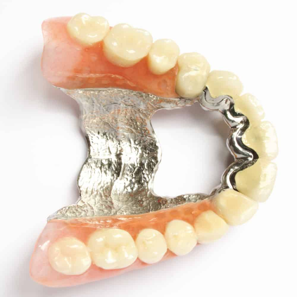Dentures: a guide to types of false teeth & their costs 6