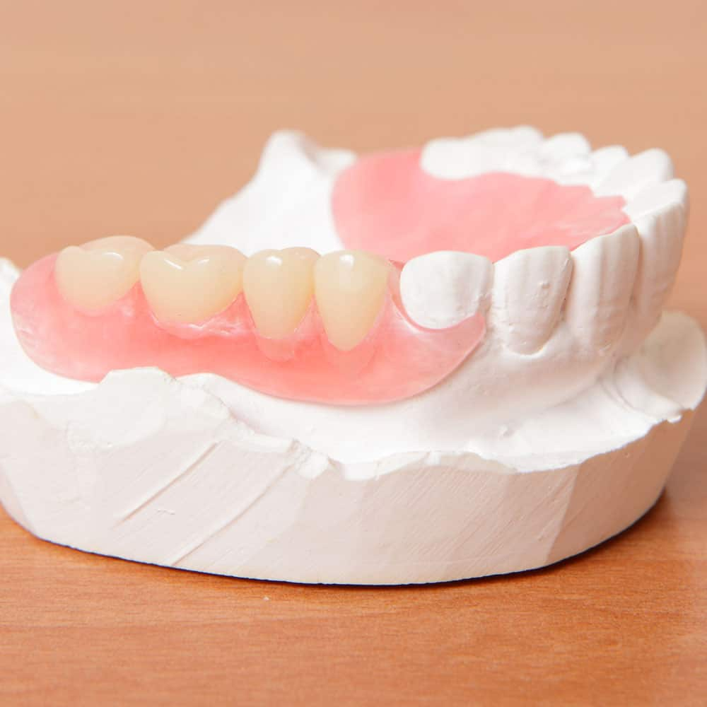 Dentures: a guide to types of false teeth & their costs 24