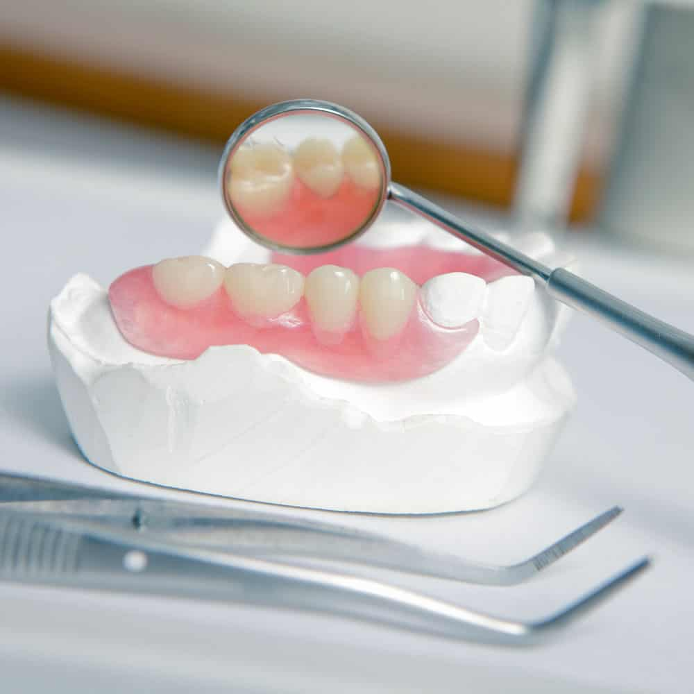 Dentures: a guide to types of false teeth & their costs 15