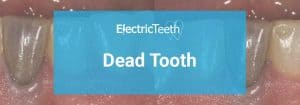 How to identify and treat a dead tooth: advice from a dentist 5