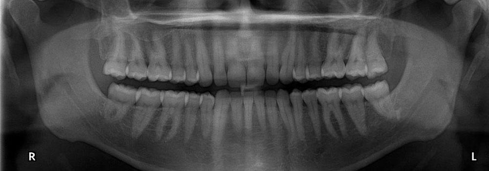 Second example of x-rays taken during a dental appointment