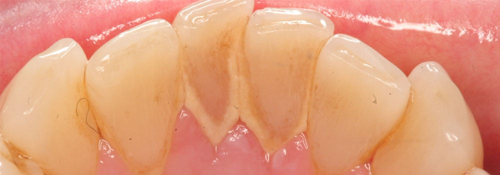 Lower teeth with staining